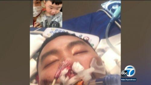 Người gốc Việt tử vong vì Covid-19 ở California